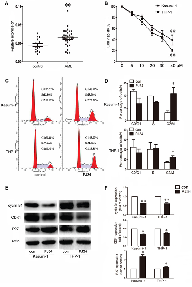 Aberrant expression of poly(ADP-ribose) polymerase 1 (PARP-1) in acute myeloid leukemia (AML) patients and effect of PARP-1 inhibition on proliferation and cell cycle in AML cell lines.