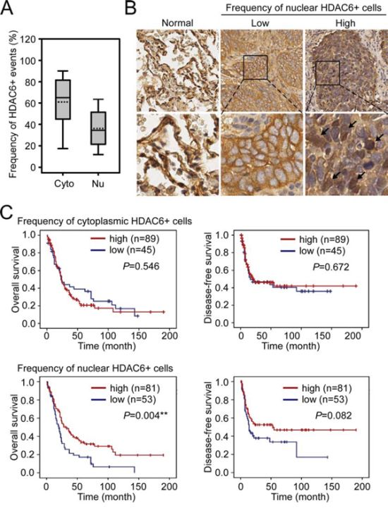 The association of nuclear HDAC6 frequency with NSCLC patient survival.