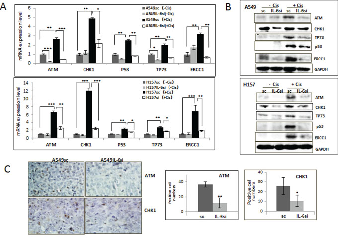 IL-6 expressing A549sc and H157sc cells showed higher expression of DNA repair molecules upon cisplatin treatment compared to A549IL-6si and H157IL-6si cells.