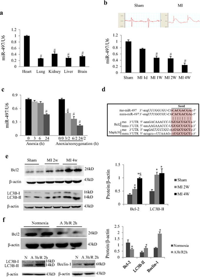 MiR-497 and its target proteins were changed in response to myocardial infarction (MI) or anoxia/reoxygenation.