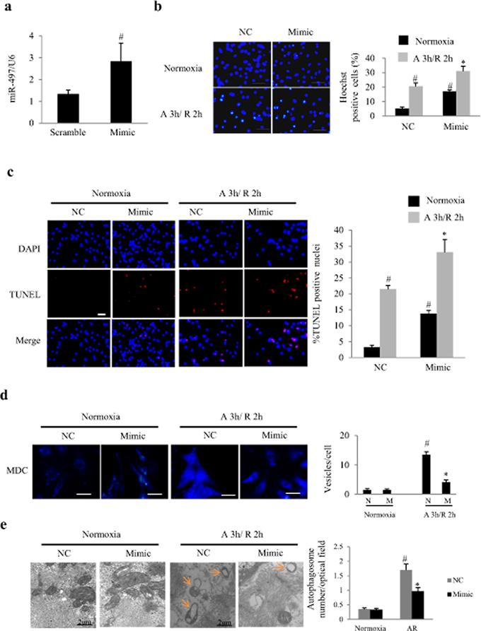 Overexpression of miR-497 enhanced apoptosis and autophagy in cultured neonatal rat cardiomyocytes (NRCs).