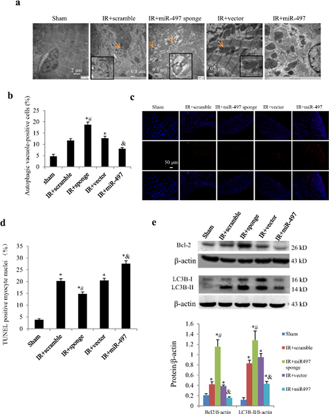Effects of Ad-miR-497 sponge and Ad-miR-497 on myocardial autophagy and apoptosis in mice subjected to ischemia/reperfusion (IR).
