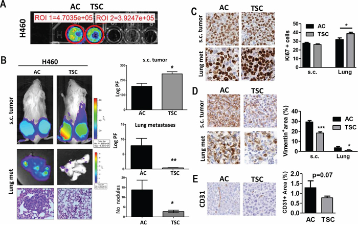 TSC cells display higher tumorogenic potential and decreased metastatic activity.