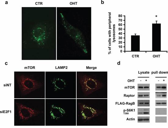E2F1 induces lysosomal trafficking.