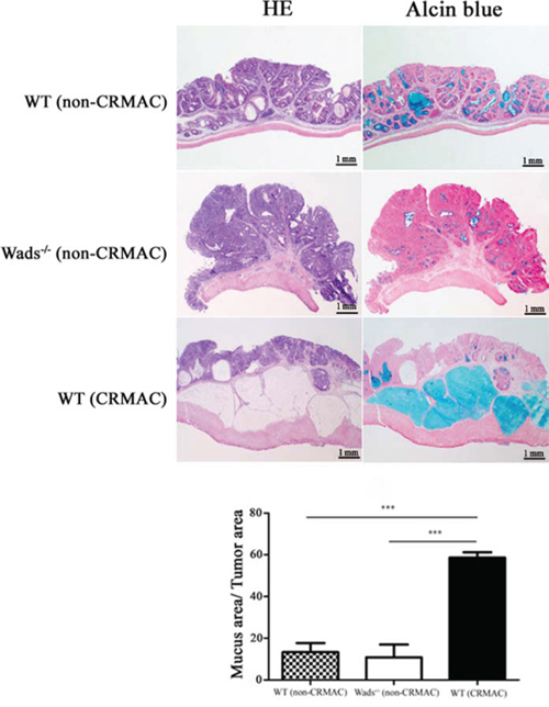 At week 37, adenocarcinomas developed CRMAC in half of WT mice, identified by HE and Alcian blue staining to assess the percentage of the mucus area (≥50% of the total tumor area).