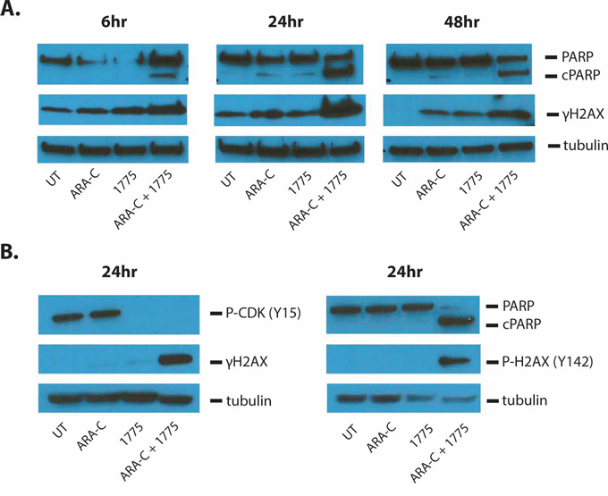 AZD1775 enhances DNA damage and apoptosis induced by cytarabine.