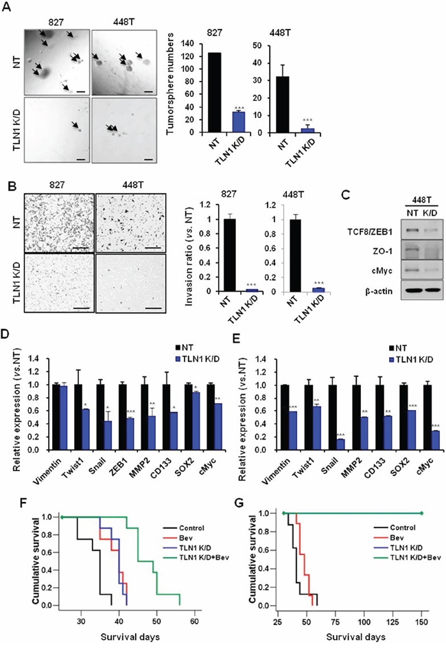 Effects of TLN1 inhibition on malignant progression and survival gains by bevacizumab in patient derived GBM cells.