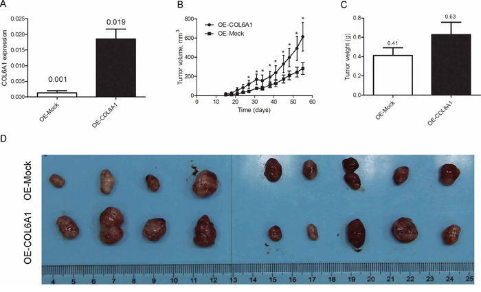 COL6A1 promotes 7860 tumor growth in nude mice.