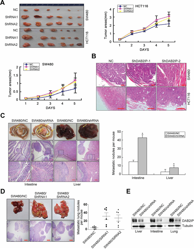DAB2IP is sufficient to inhibit tumor growth and metastasis of CRC cells.