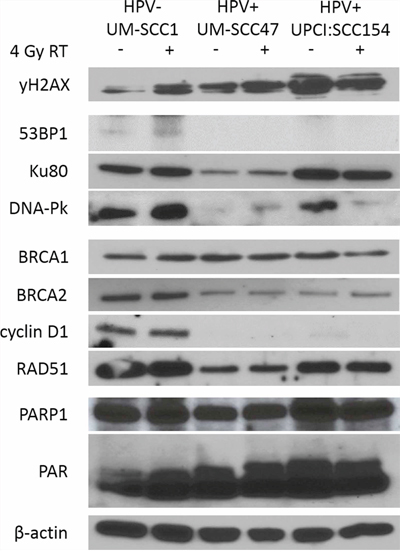 HPV+ HNSCCs have decreased expression of NHEJ and HR proteins including DNA-Pk and BRCA2.