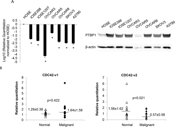 CDC42-v2 is downregulated in ovarian cancer cell lines and ovarian tumor tissues.
