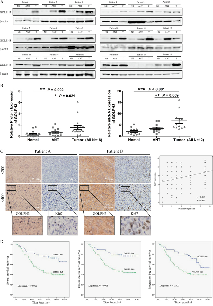 GOLPH3 expression is increased in human bladder cancer tissues and is related to the expression of Ki67 and the prognosis of patients.