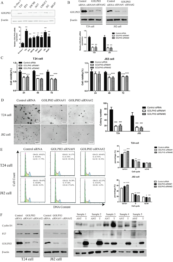 GOLPH3 silencing inhibited the proliferation and tumorigenicity of bladder cancer cells in vitro.