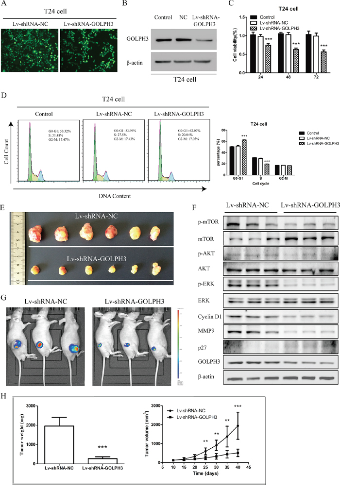GOLPH3 silencing inhibits the tumorigenicity of bladder cancer cells in vitro and in vivo.