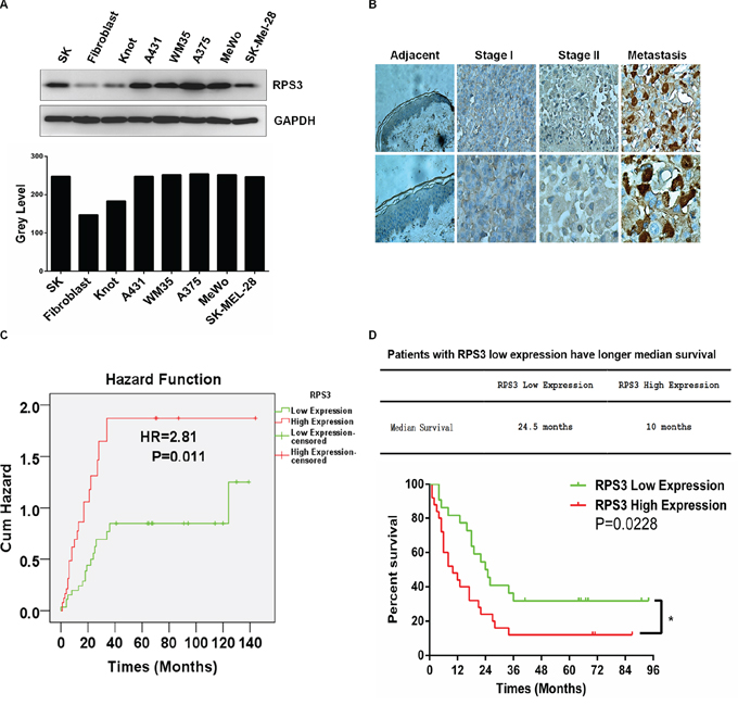 RPS3 was highly expressed in melanoma cell lines and tumor tissues and associated with poor prognosis.