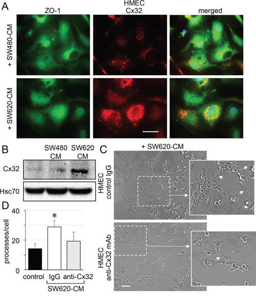 SW620 cell-secreted factors overexpress the endothelial Cx32 favoring tubulogenesis.