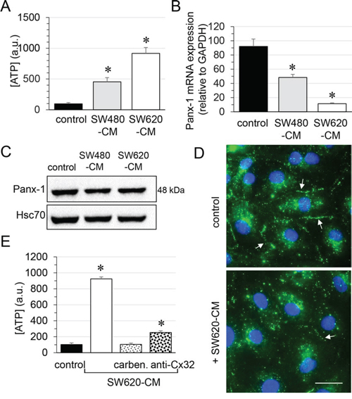 Role of endothelial Cx32 in SW620-CM-triggered ATP release in HMEC.