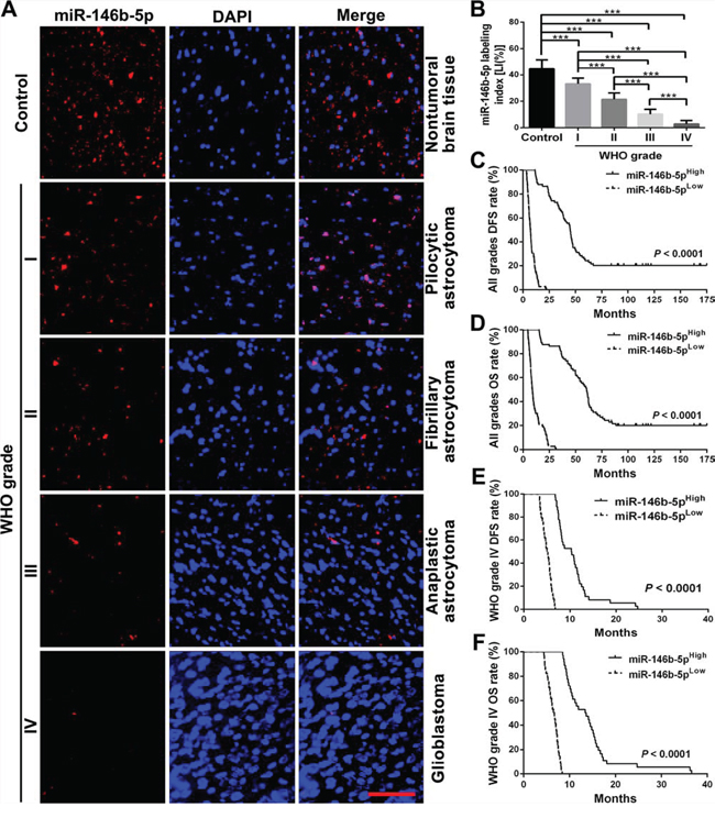 miR-146b-5p expression correlates with glioma grades and patients' prognoses.
