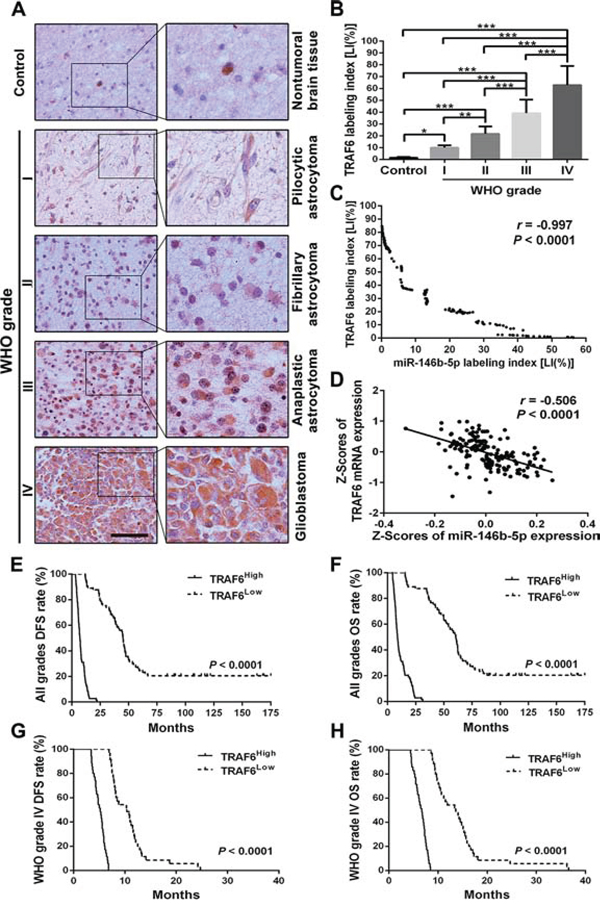 TRAF6 expression correlates with glioma grades, miR-146b-5p expression and patients' prognoses.