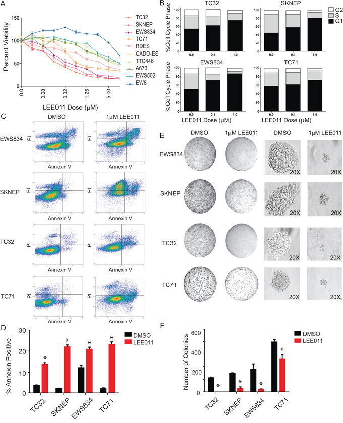 Pharmacologic inhibition of CDK4/6 in Ewing sarcoma results in impaired cell viability, G1 arrest and cell death in Ewing sarcoma cell lines.