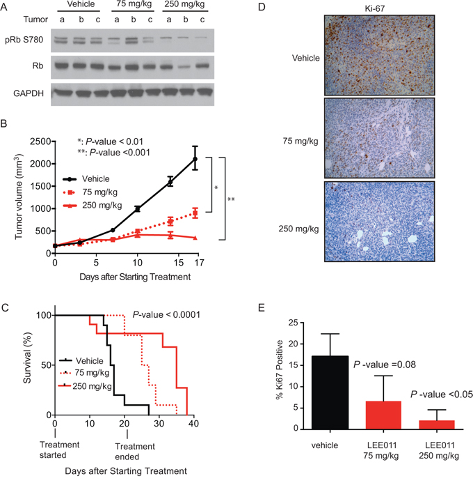 LEE011 impairs Ewing sarcoma tumor xenograft growth in vivo.