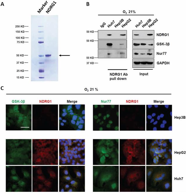 NDRG1 binds to GSK-3β and Nur77 in HepG2 and Huh7 cells.