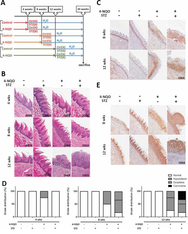 Diabetic conditions promoted oral carcinogenesis in vivo.