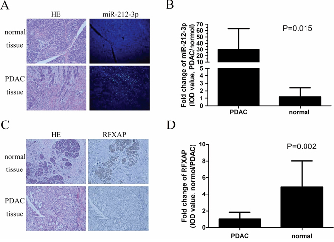 Expression features of miR-212-3p and RFXAP in normal pancreatic tissue and PDAC.