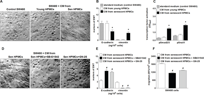 Effect of senescent HPMCs on the development of EMT in SW480 cells.