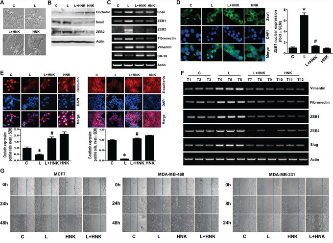 Honokiol inhibits leptin-induced epithelial-mesenchymal transition and migration of breast cancer cells.