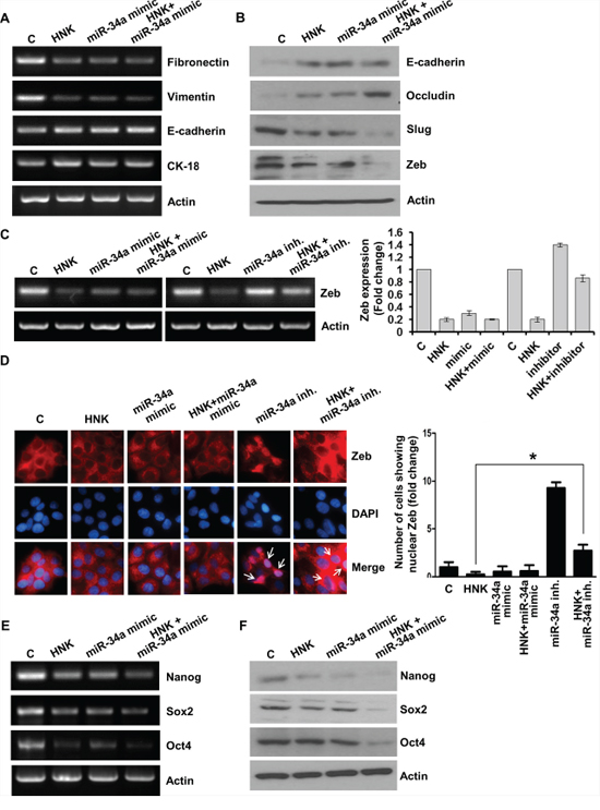 Evidence supporting the involvement of miR-34a in honokiol-mediated modulation of EMT and stemness factors.