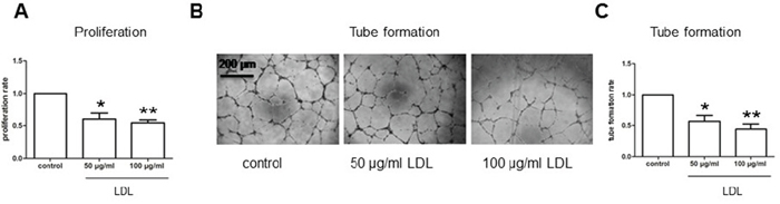 LDL attenuates cell proliferation and tube formation of hCMEC/D3 cells under hypoxic condition.