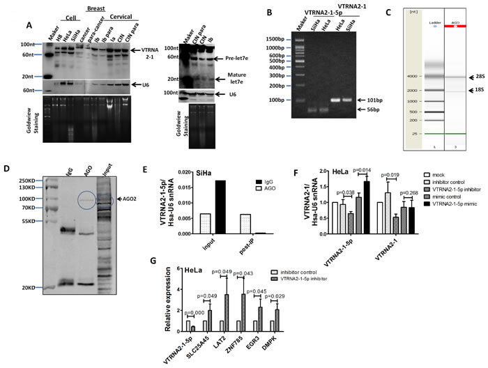 VTRNA2-1-5p presence in cervical tissues and cells.