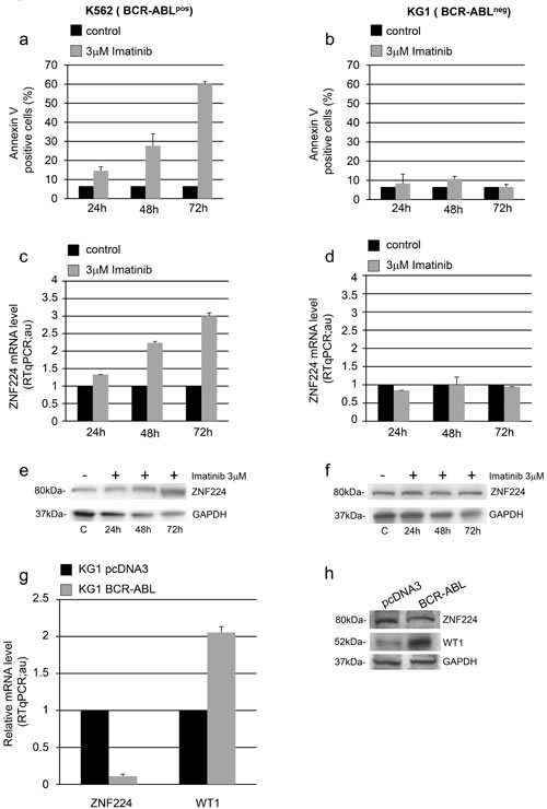 Role of BCR-ABL in ZNF224 down-modulation.
