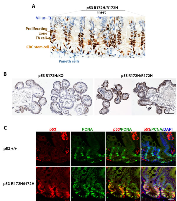 p53 R172H expression in cycling and proliferative cells of small intestinal crypts.