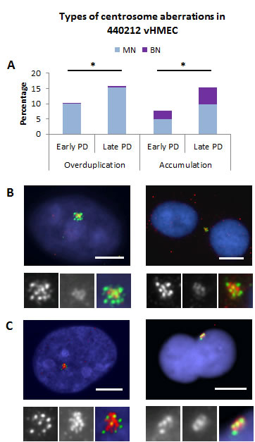 Centriole overduplication and accumulation increase in vHMEC with PDs.