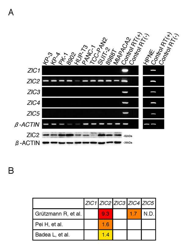 ZIC2 is uniquely expressed in PDAC cells.