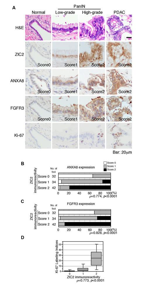 Immunohistochemical analysis of the pancreas harboring PDAC.