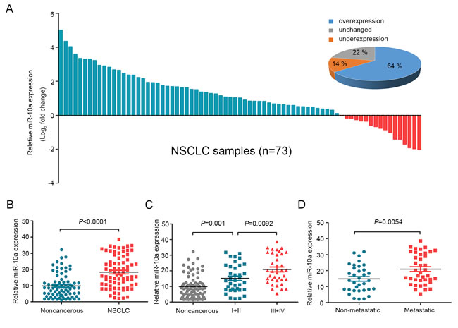MiR-10a is overexpressed in NSCLC and correlated with clinical stage and tumor metastasis.