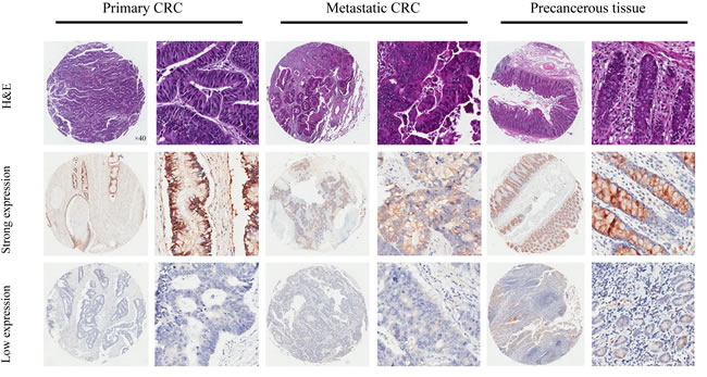 Representatives of ANO9 expression in consecutive TMA slides consisting of 75 non-tumor, primary, and metastatic CRC tissues detected by immunohistochemistry (magnification×40 or 400).