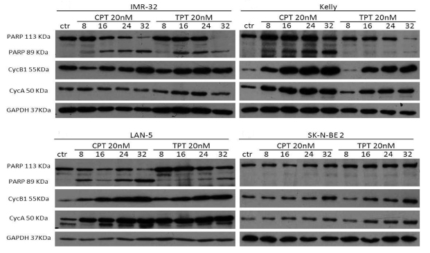 Effects of camptothecin (CPT) and topotecan (TPT) on cell cycle proteins and PARP cleavage.