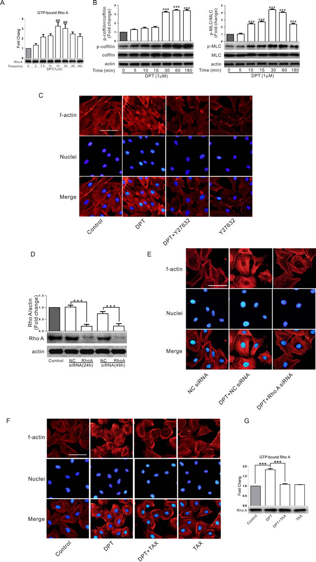 RhoA/ROCK signaling pathway was involved in DPT-induced cytoskeletal remodeling and its relationship with actin and tubulin.