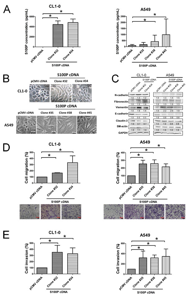 Overexpression of S100P protein caused EMT and increased cell migration and invasion.