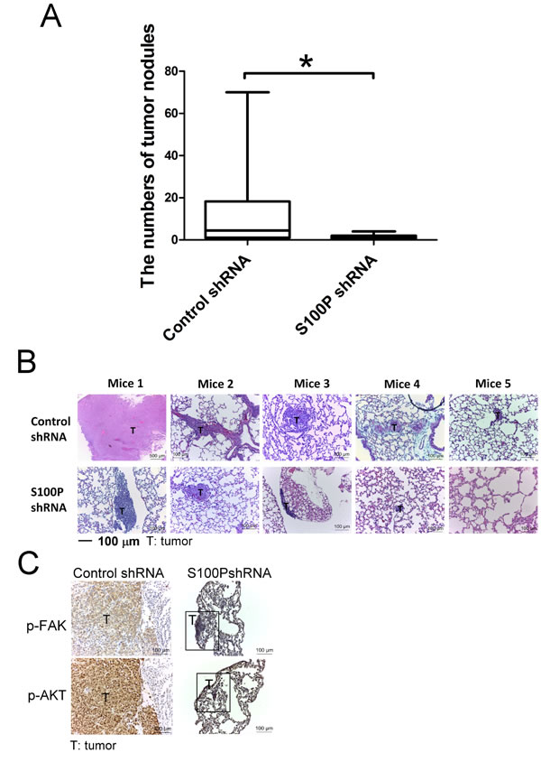 Inhibition of S100P decreased lung cancer metastasis