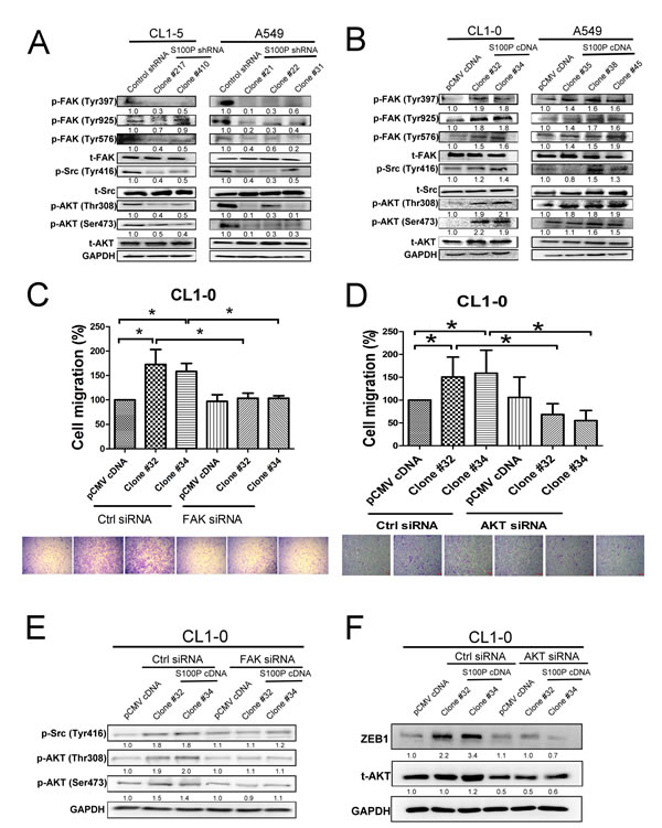 FAK/Src/AKT signaling is involved in S100P-mediated cancer.