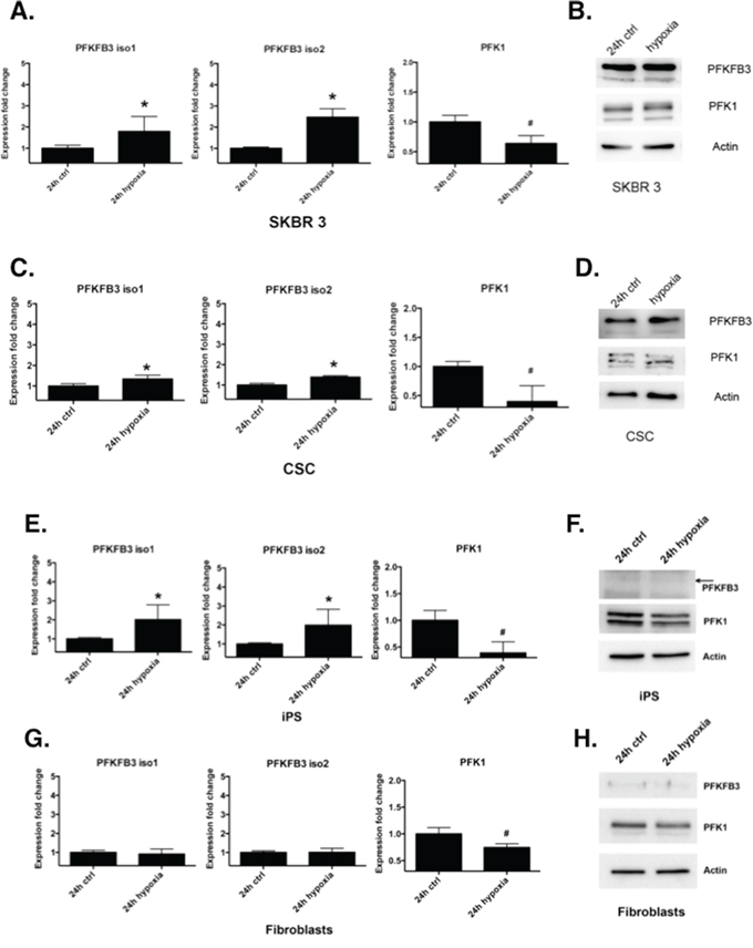 Regulation of PFKFB3 and PFK1 by hypoxia.