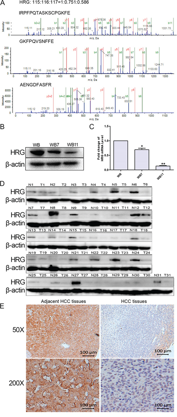 Validation of HRG expression in both neoplastic transformation and HCC tissues.