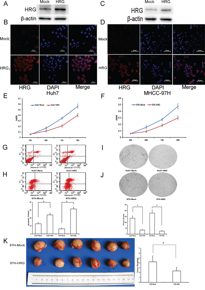 The functional importance of HRG in Huh7 and MHCC-97H hepatocellular carcinoma cells.