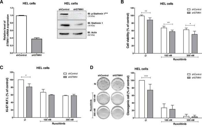 Stathmin 1 silencing reduces cell proliferation and clonogenicity.