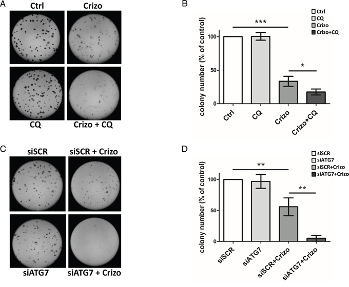 Effect of ALK oncogene inhibition combined with pharmacological or molecular inhibition of the autophagy machinery on Karpas-299 clonogenic survival.